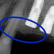 after - Distal bone defect of the canine treated with a mixture of amelogenins (growth factors) and bio-material (bone substitutes) and the insertion of three implants